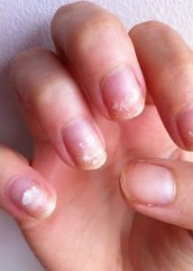 Как вылечить ногтевую пластину после гель лака