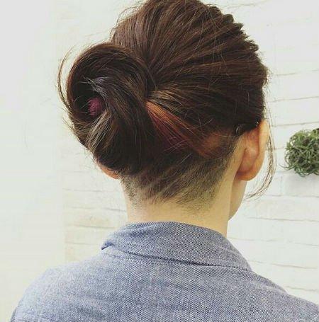 выпадение волос у девушек причины лечение